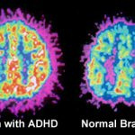 Cure ADHD with meditation